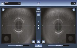 VX160 EyeRefract Diagnose